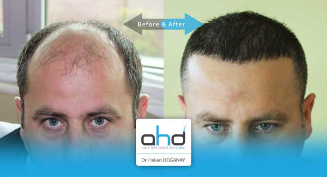 AHD Hair Transplant Before After 1