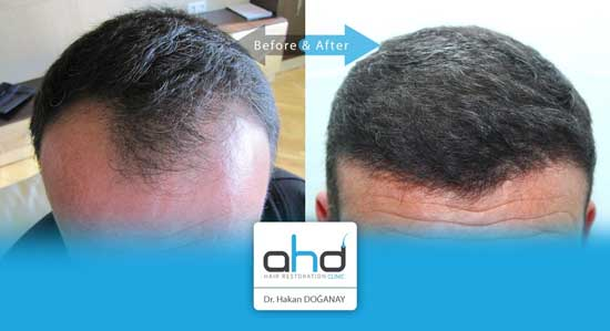 AHD Hair Transplant Before After 2