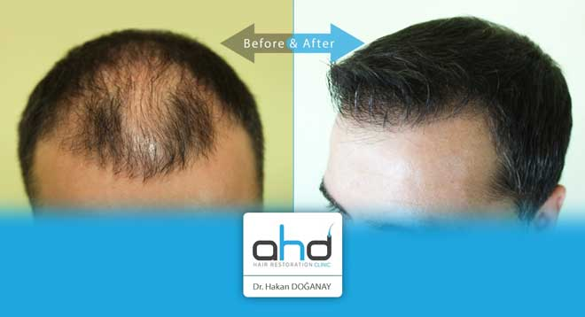 AHD Hair Transplant Before After 3