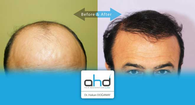 AHD Hair Transplant Before After 4