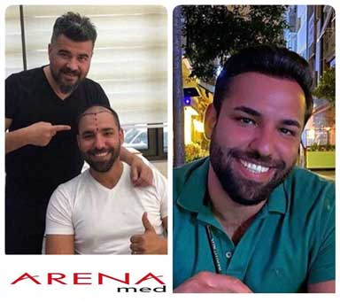 Arenamed Hair Transplant Before After 1