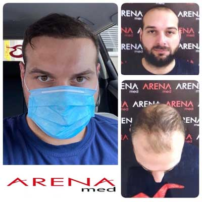 Arenamed Hair Transplant Before After 2
