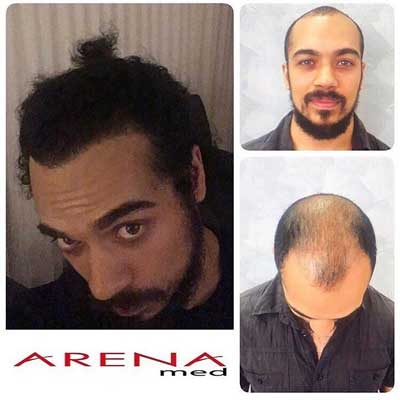 Arenamed Hair Transplant Before After 3