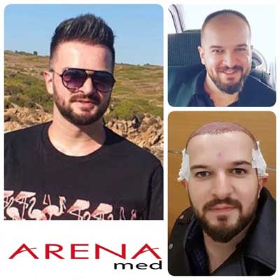 Arenamed Hair Transplant Before After 4