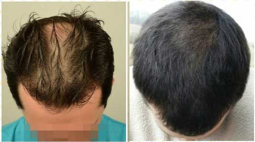 Asmed Hair Transplant Before After 1