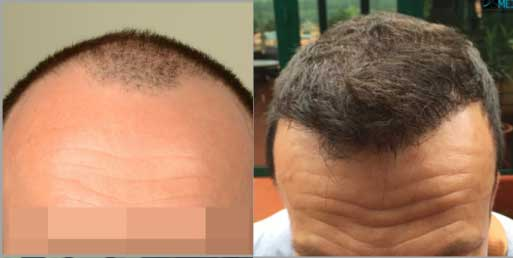 Asmed Hair Transplant Before After 2