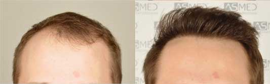 Asmed Hair Transplant Before After 3