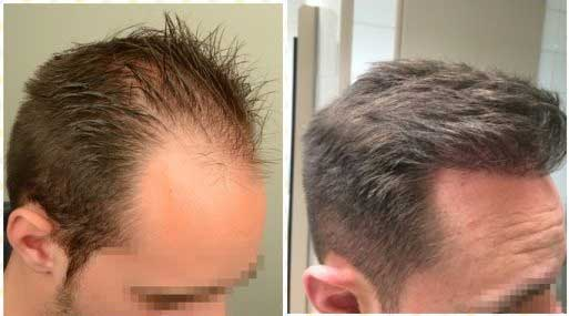Asmed Hair Transplant Before After 4