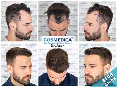 Cosmedica Hair Transplant Before 1After