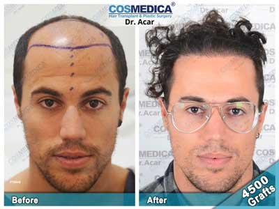 Cosmedica Hair Transplant Before After 2