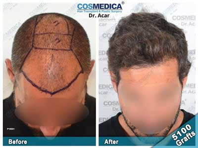 Cosmedica Hair Transplant Before After 3