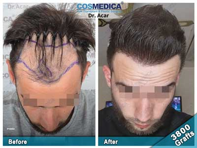 Cosmedica Hair Transplant Before After 4