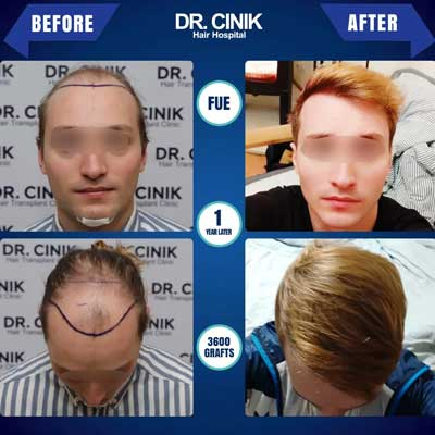 Dr Cinik Hair transplant Before After 1