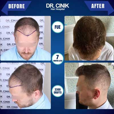 Dr Cinik Hair transplant Before After 2