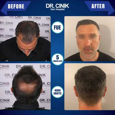Dr Cinik Hair transplant Before After 3