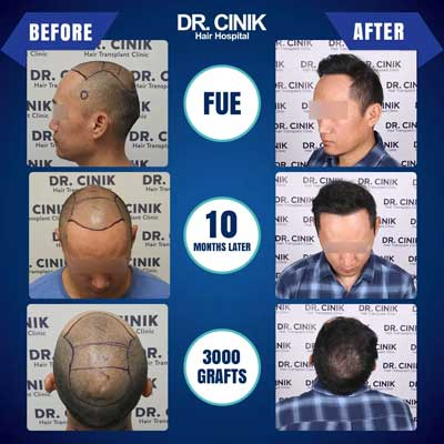 Dr Cinik Hair transplant Before After 4