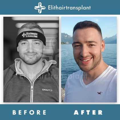 Elithairtransplant Hair Transplant Befora After 2
