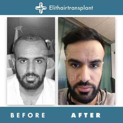 Elithairtransplant Hair Transplant Befora After 3