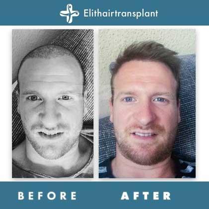 Elithairtransplant Hair Transplant Befora After 4