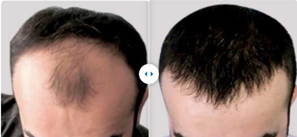 Estethica Hair Transplant Before After 1