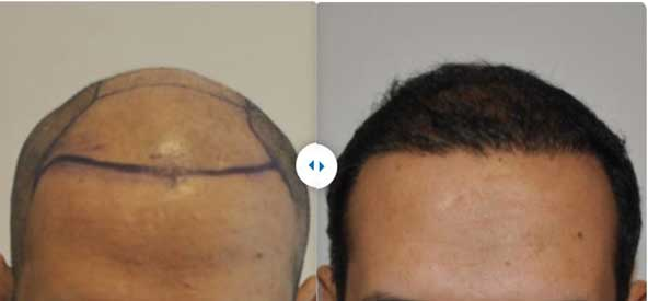 Estethica Hair Transplant Before After 2