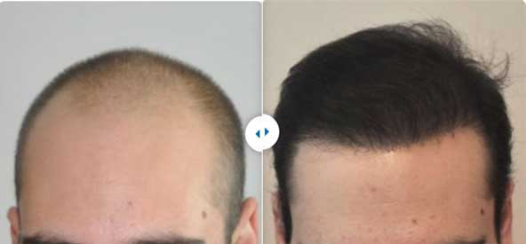 Estethica Hair Transplant Before After 3