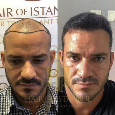 Hair of Istanbul Hair transplant Before After 1
