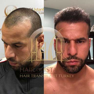 Hair of Istanbul Hair transplant Before After 2