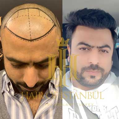 Hair of Istanbul Hair transplant Before After 3