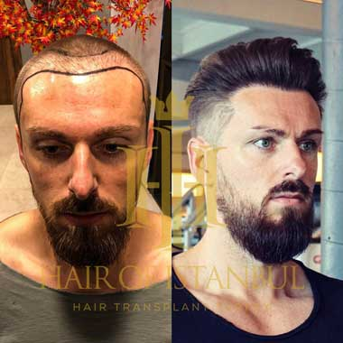 Hair of Istanbul Hair transplant Before After 4