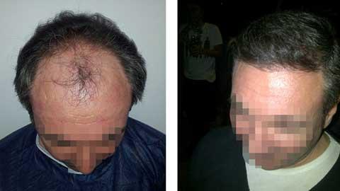 Hermest Hair Transplant Before After 1