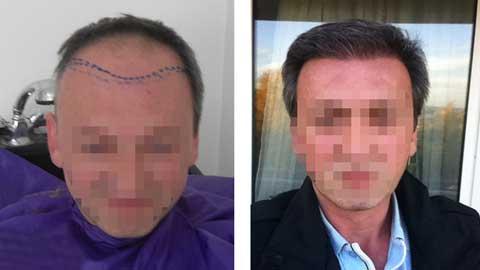 Hermest Hair Transplant Before After 2