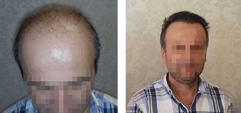 Hermest Hair Transplant Before After 3