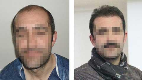 Hermest Hair Transplant Before After 4