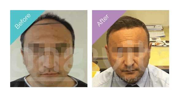Longevita Hair Transplant Before After 2