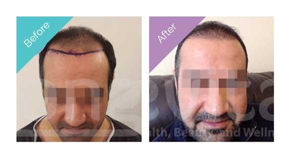 Longevita Hair Transplant Before After 3