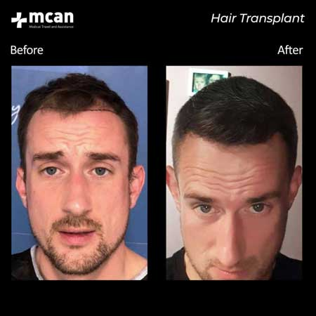 Mcan Health Hair Transplant Before After 2