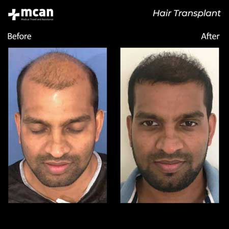 Mcan Health Hair Transplant Before After 3