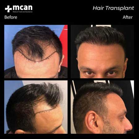 Mcan Health Hair Transplant Before After 4