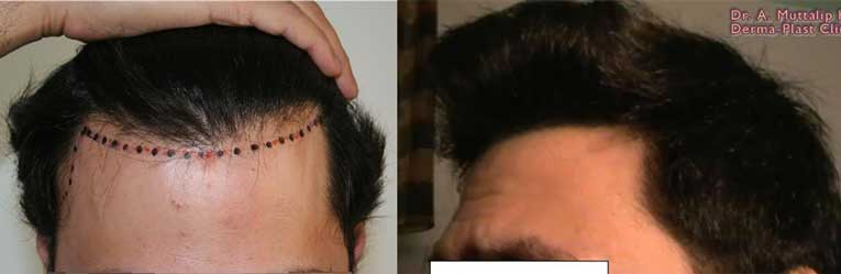 muttalip keser before after 1
