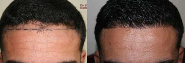 muttalip keser before after 2
