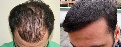 muttalip keser before after 3