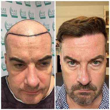 Sule Hair Transplant Before After 1