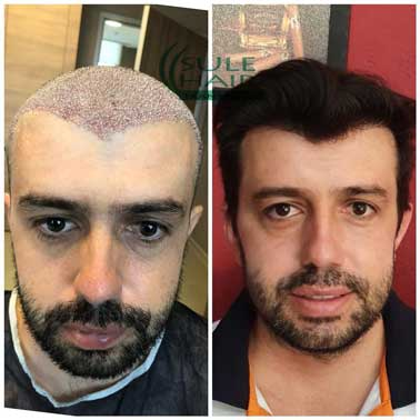 Sule Hair Transplant Before After 2
