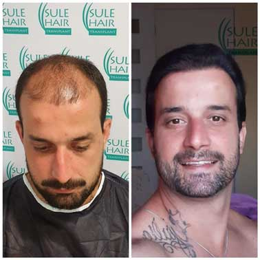 Sule Hair Transplant Before After 3