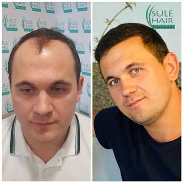 Sule Hair Transplant Before After 4
